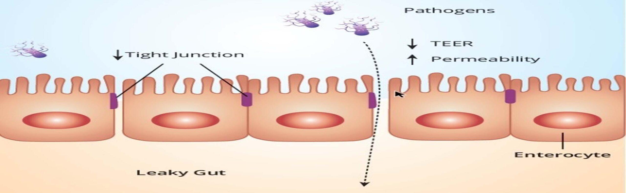 Endotoxins increases Oxidative stress